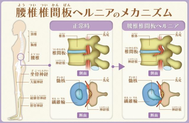 腰椎椎間板ヘルニアのメカニズム